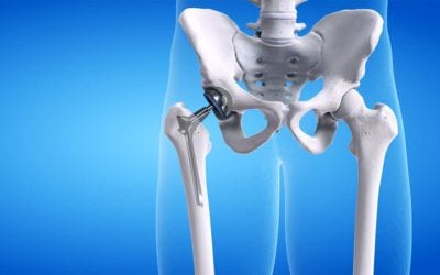 Pros and Cons of hip replacement